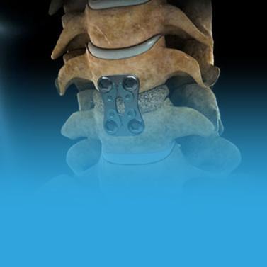Instituto da Coluna - Artrodese minimamente invasiva e convencional