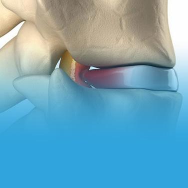 Instituto da Coluna - Tratamento de hérnia discal e dor discogênica
